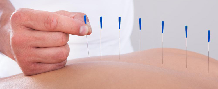 Madrid Chiropractor | Madrid chiropractic Acupuncture/Dry Needling |  IA |